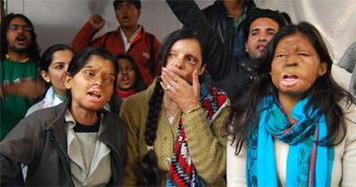 acid-attacks-victim-ivoomi